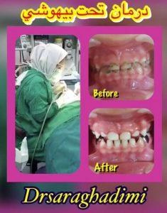 درمان دندانپزشکی تحت بیهوشی