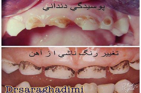 علت تیره شدن دندانها! قطره اهن یا شیر شبانه...