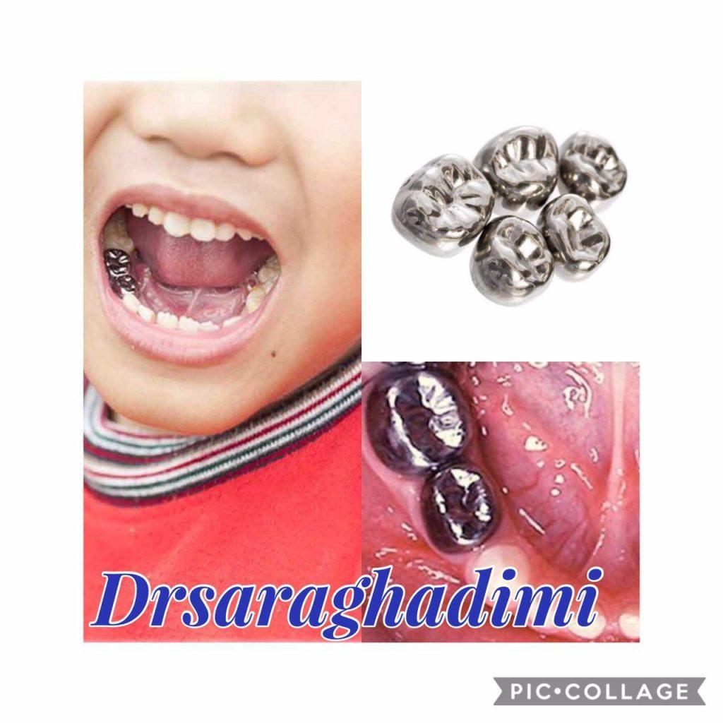 روکش های دندان های شیری (SSC)