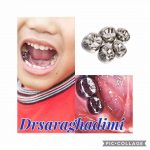 روکش های دندان های شیری یا SSC