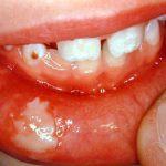 گاز گرفتگي لب، گونه و زبان در كودكان پس از انجام بي حسي برای درمانهای دندانپزشکی