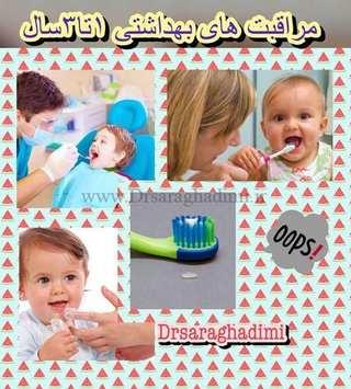 مراقبت های بهداشت دهانی کودکان یک تا سه سال