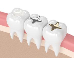 عصب کشی دندان کودکان